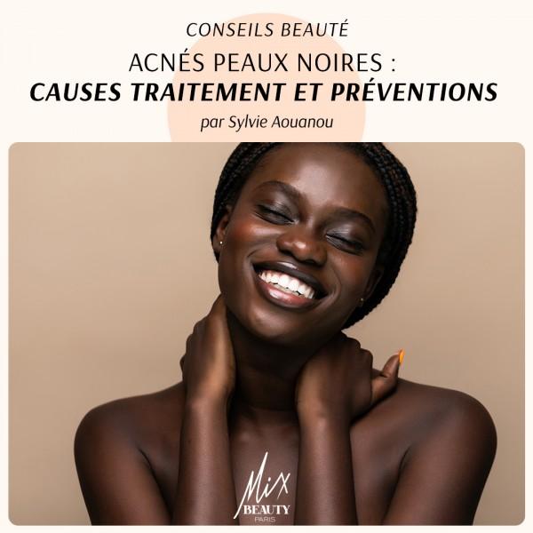 Acnés peaux noires : causes traitement et préventions